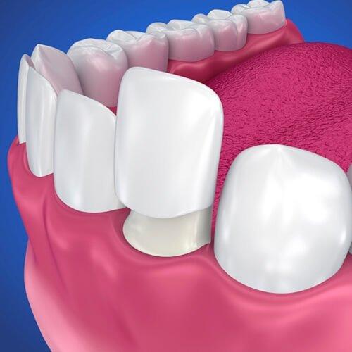 Естетична стоматология – избелване, фасети, бондинг