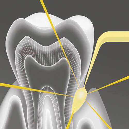 Пародонтология и лазерно лечение
